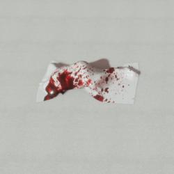 Dead body 2